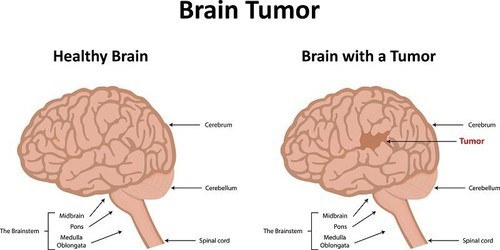 brain-tumor-comparison