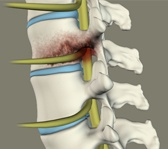 spinal-infection